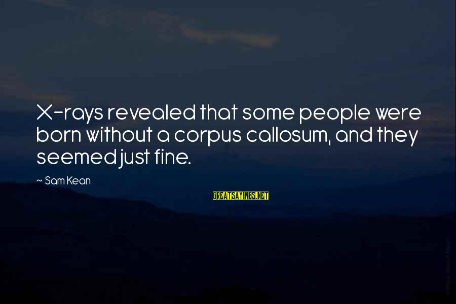 Corpus Callosum Sayings By Sam Kean: X-rays revealed that some people were born without a corpus callosum, and they seemed just