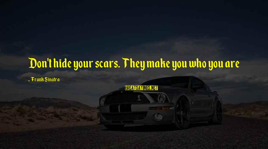 Gregory Peck Ahab Sayings By Frank Sinatra: Don't hide your scars. They make you who you are