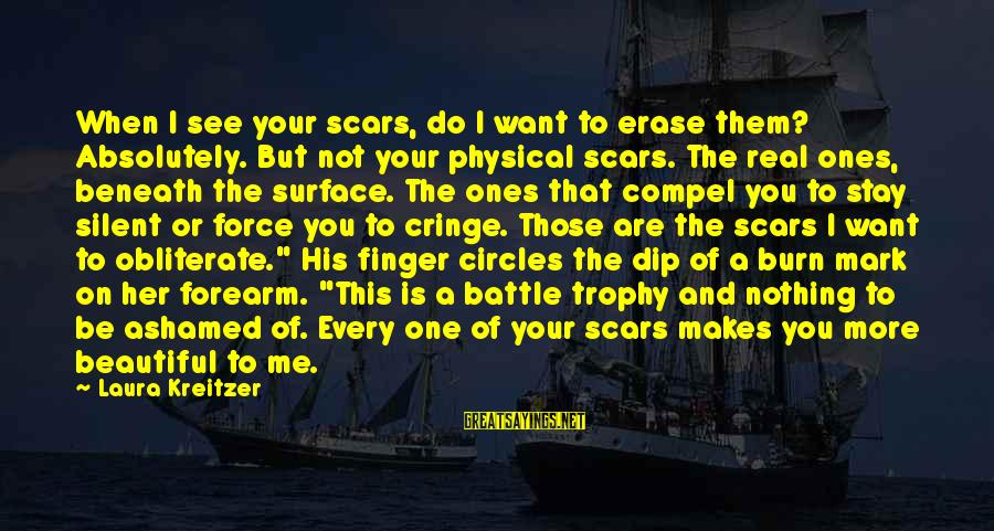 Surface Science Sayings By Laura Kreitzer: When I see your scars, do I want to erase them? Absolutely. But not your