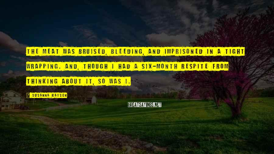 Susanna Kaysen Sayings: The meat was bruised, bleeding, and imprisoned in a tight wrapping. And, though I had
